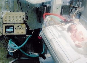 Dr. Bird's inventions include the Babybird and the fourth generation VDR (Volumetric Diffusive Respiration) Percussionator ventilator, shown above.